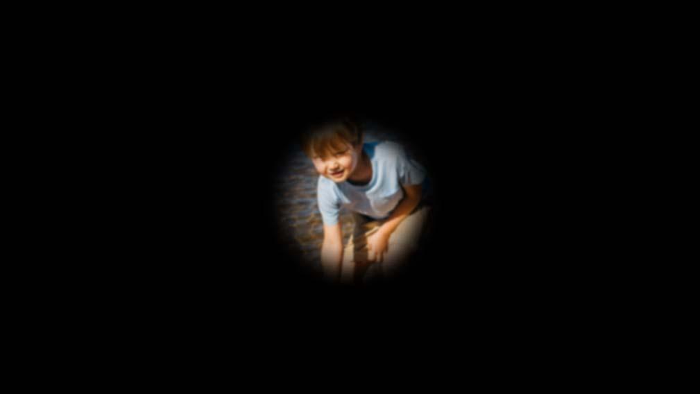 Cómo es una consulta de baja visión para pacientes con Glaucoma y Degeneración Macular