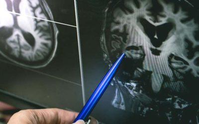 Terapia visual tras un ictus